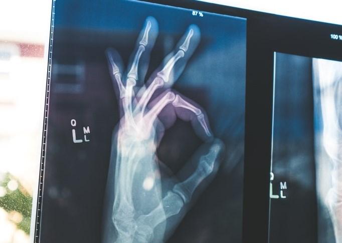 Xray of hand giving 'OK' sign